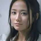「木村文乃」アトピー性皮膚炎に悩む!ストレスが原因か?